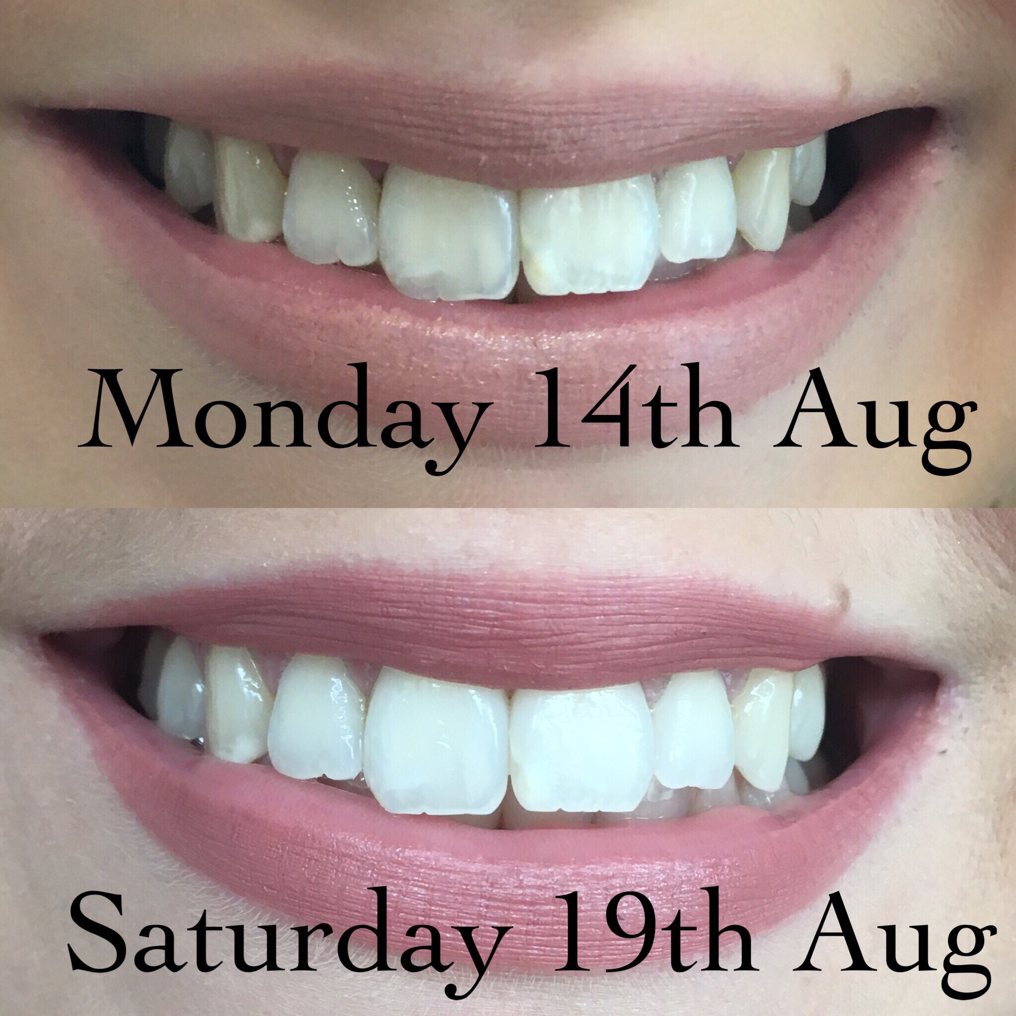 results with Just Smile UK Activated Charcoal