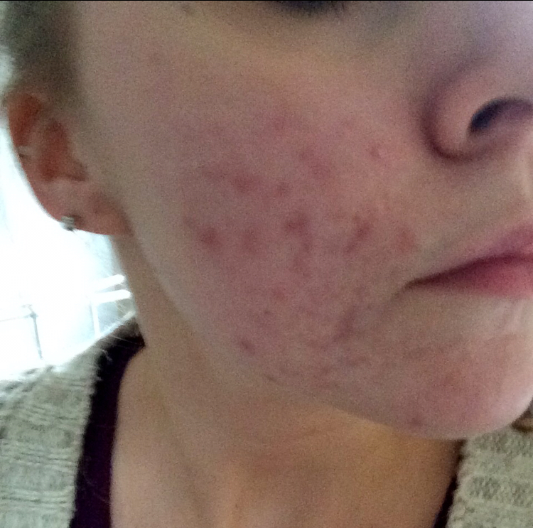 My 2 Years Post Acne Skin | Thoughts & Reflections